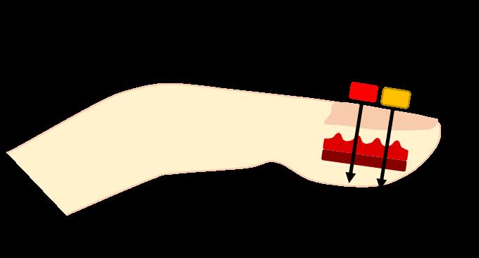 オキシ 方 パルス メーター 測り